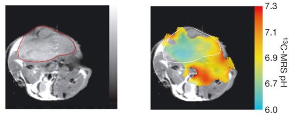 Протонное ЯМР-изображение поперечного сечения мыши с имплантированной опухолью